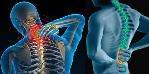 Các cơn đau nhức do thoát vị đĩa đệm gây ra phụ thuộc vào từng giai đoạn bệnh