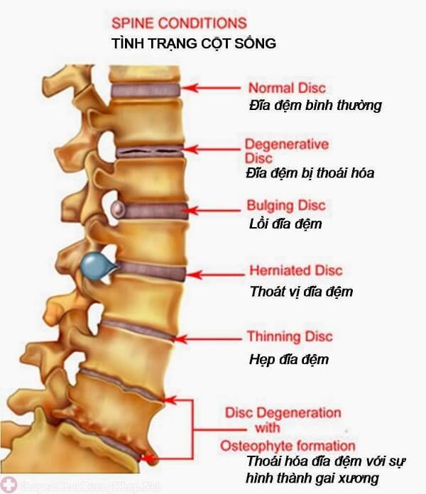 Thoát vị đĩa đệm (tên tiếng anh là Disc herniation) là hiện tượng đĩa đệm bị dịch chuyển ra khỏi vị trí bên trong đốt sống