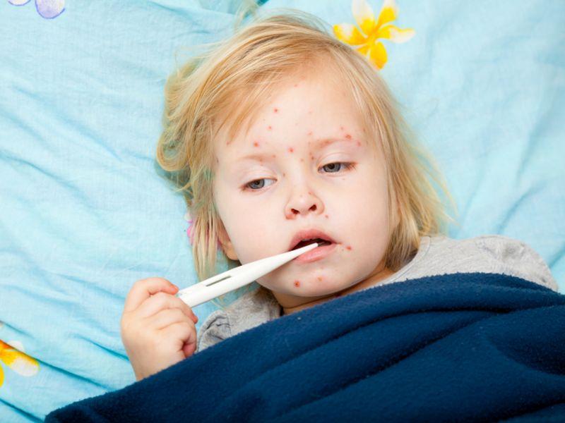 Sốt phát ban và sốt xuất huyết có dấu hiệu giống nhau rất khó phân biệt