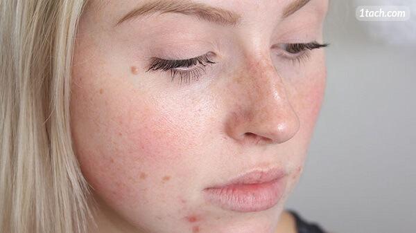 Dùng Vitamin E 400 IU dạng uống để bôi mặt có thể khiến da xấu và nổi mụn