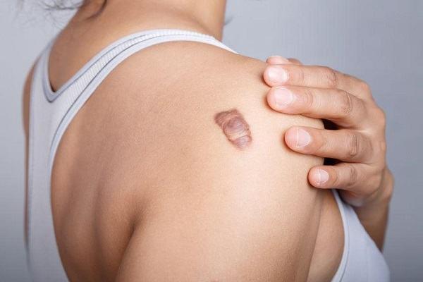 Sẹo lồi là gì? 3 cách chẩn đoán và điều trị như thế nào hiệu quả triệt để