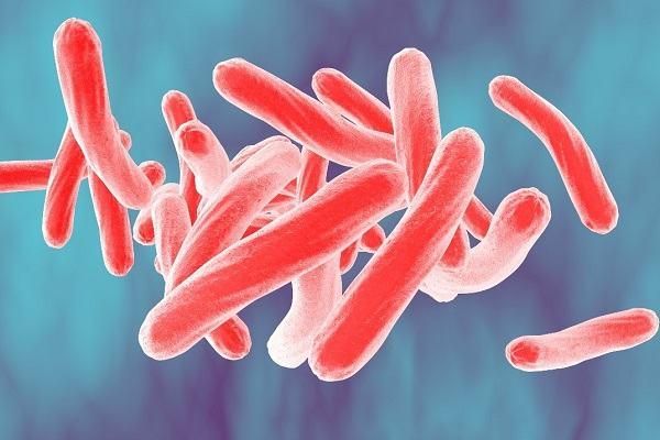 Vi khuẩn gây bệnh lao thanh quản M.tuberculosis