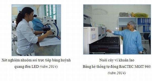 Phương pháp phát hiện và chẩn đoán lao