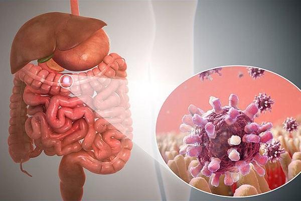 Viêm dạ dày ruột ở người lớn: Nguyên nhân, triệu chứng và cách điều trị