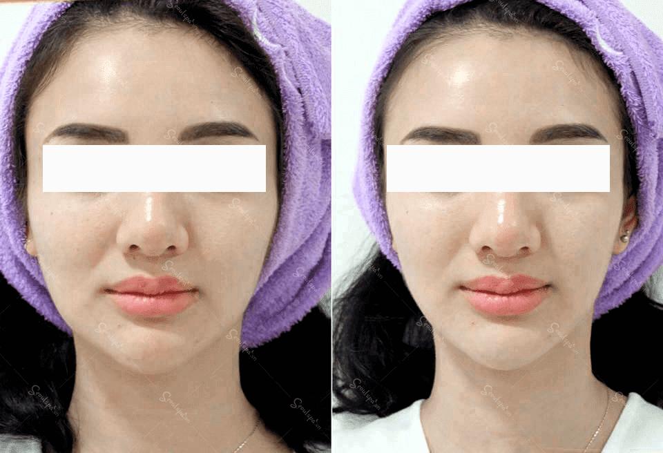 Hình ảnh khách hàng trước và sau khi làm đẹp tại SeoulSpa