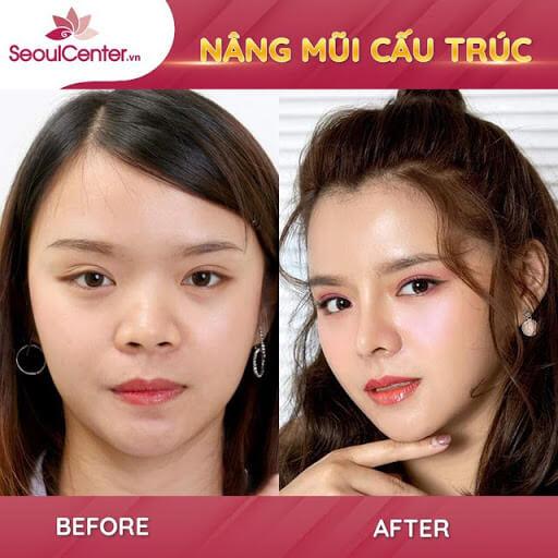 Nâng mũi giúp khuôn mặt thêm hài hòa