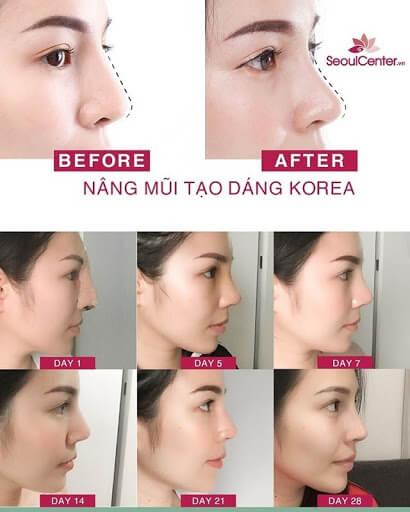 Dáng mũi trước và sau khi nâng