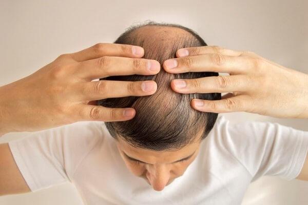 DHT là gì? Làm thế nào để điều trị rụng tóc DHT?
