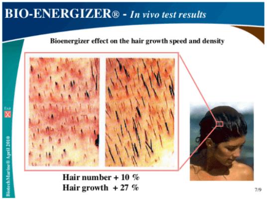 DHT Blocker cuộc cách mạng cho những người bị rụng tóc hói đầu 2