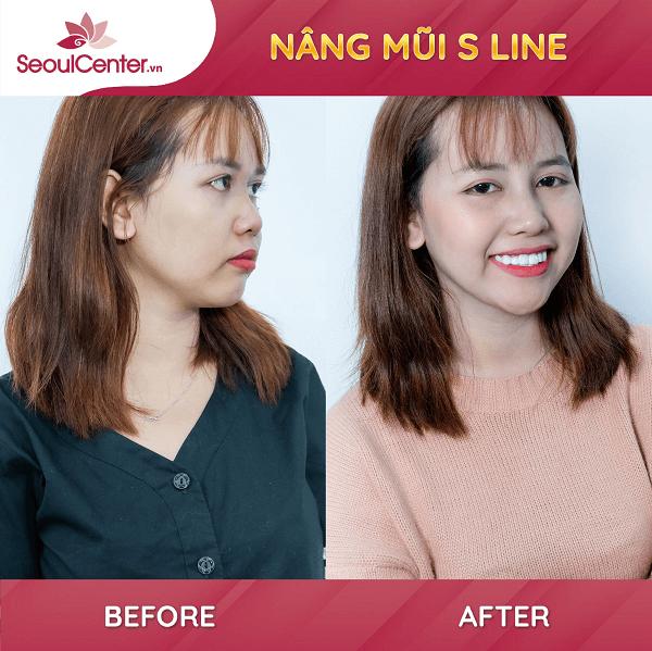 Hình ảnh thực tế của khách hàng sau khi nâng mũi tại Seoul Center