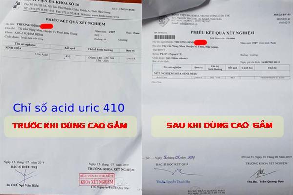 Cao gắm giúp hạ chỉ số acid uric nhanh chóng